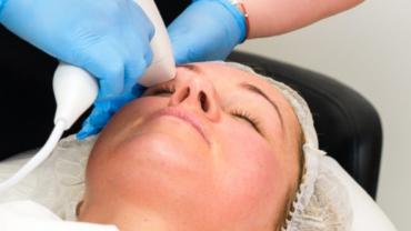 Venus Viva – Skin Resurfacing treatment