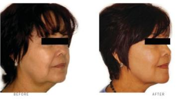 Menopause skin treatment